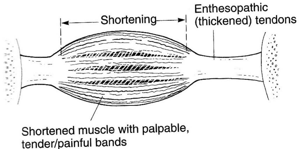 enthesopathy